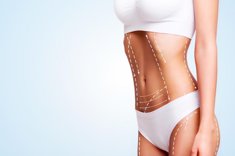 Află ce NU trebuie să faci imediat după o operație estetică